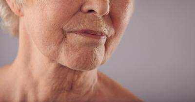 Imagem 173 de Dicas para cuidado com a pele madura usando a aromaterapia
